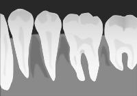 歯科金属や虫歯がアトピー、アレルギー、湿疹、かゆみの原因!?