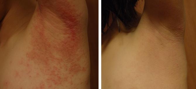 子どもの湿疹、アトピーへの対処法
