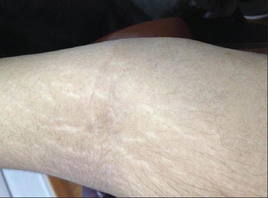 皮膚萎縮線条